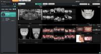 제노레이, 3D 전용 덴탈 소프트웨어 'Theia' 출시